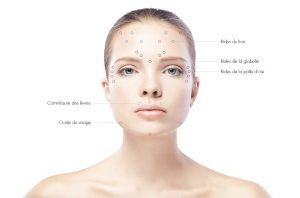Zones injection botox Tunisie