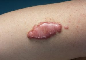 Cicatrice chéloïde