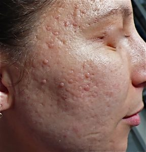 cicatrice d'acné