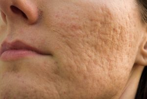 Traitement cicatrices acnés